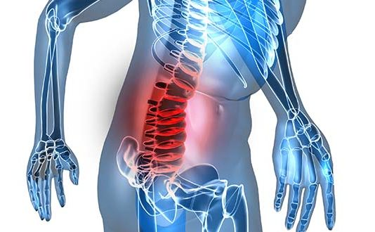 Artrose wervelkolom