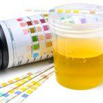 3 Manieren om urinezuur te verlagen en jicht te voorkomen